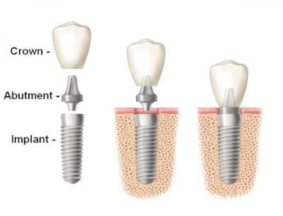 دندانپزشکی دکتر سلیمانی (خدمات درمانی تضمینی) در گروه  زیبایی و پزشکی دندانپزشکی