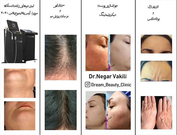 لیزر موهای زائد تزریق ژل بوتاکس درمان ریزش مو در گروه  زیبایی و پزشکی پزشکی
