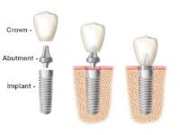 دندانپزشکی دکتر سلیمانی (خدمات درمانی تضمینی) در گروه  زیبایی و پزشکی